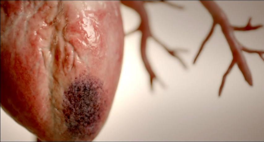 Left Anterior Descending Coronary Artery Occlusion - Acute Myocardial Infarction - The Windomaker!