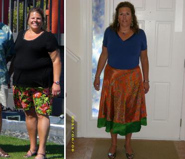 * Weight Loss Success Stories: Marcia - Jeffry Gerber, MD ...