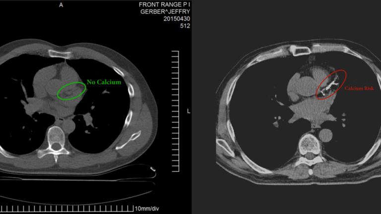 LCHF 15 years, Coronary Artery Calcium Score ZERO!